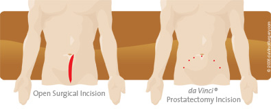 Prostatectomy Incision