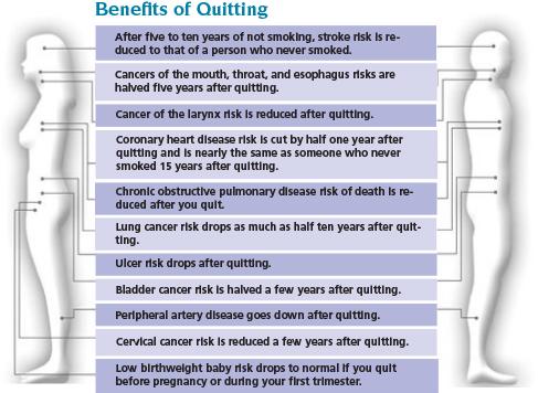 Qutting Smoking - Mercy Iowa City